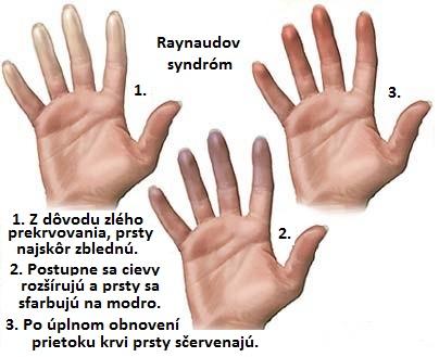 d5baa4f5e Syndróm studených rúk a nôh a postihuje najmä prsty a zastavuje pretekanie  krvi